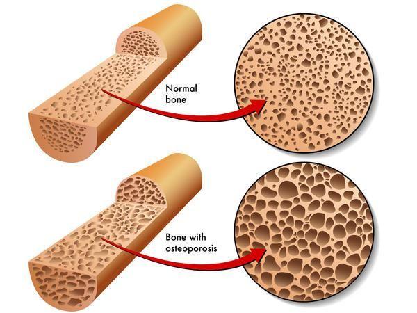 Кісткова тканина