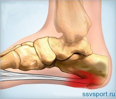 Як лікувати шпори на ногах