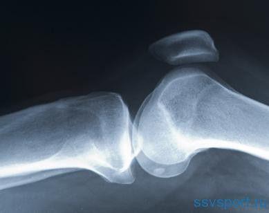 Меніск колінного суглоба - лікування без операції