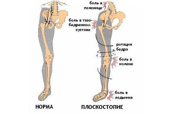 Вплив плоскостопості на коліна