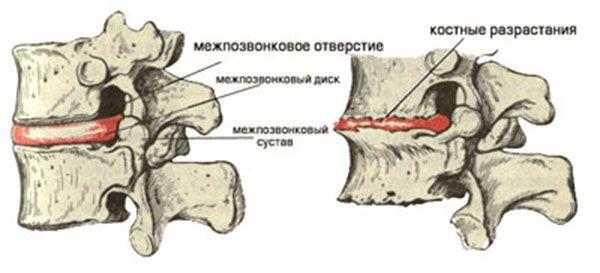 загострення остеохондрозу