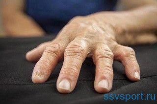 ревматоїдний артрит пальців рук