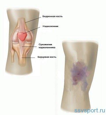 Забій коліна при падінні - лікування
